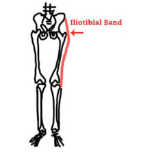 lliotibial Band Syndrome in Runners