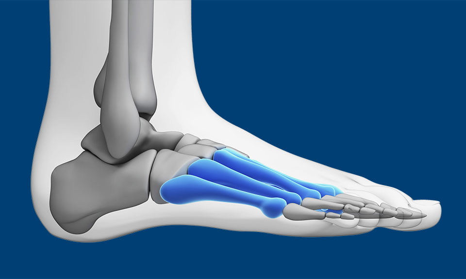 Metatarsalgia or Forefoot Pain in Runners