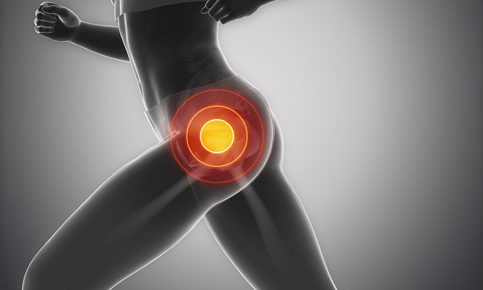 Hip Pain from Running