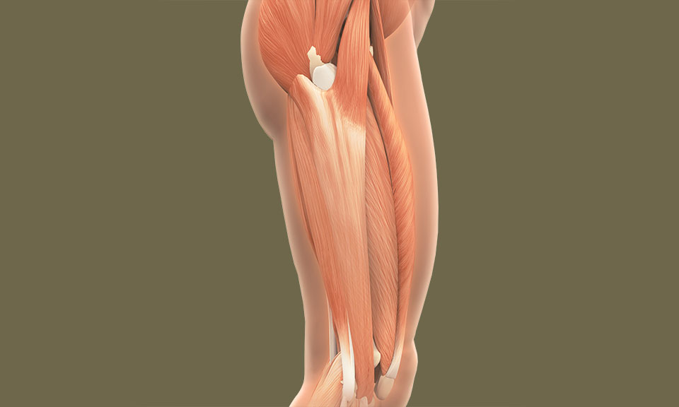 Iliotibial Band Syndrome in Runners