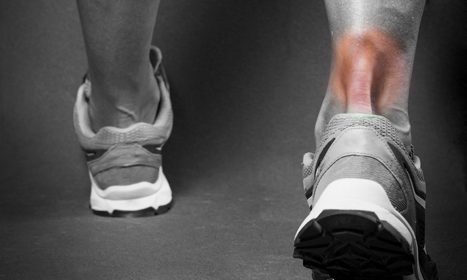 Achilles Tendonitis in Runners