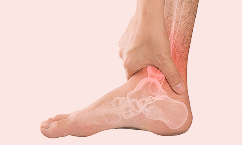 Stress Fractures from Running